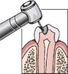 抗生剤を使った虫歯治療の流れ:治療前の虫歯:STEP1