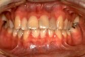 出っ歯(上顎前突)術前
