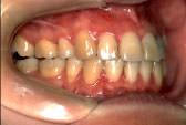 出っ歯(上顎前突)術後