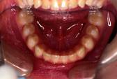 すきっ歯(空隙歯列)術前