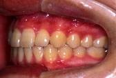 すきっ歯(空隙歯列)術後