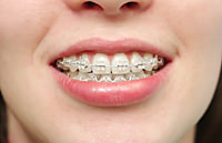 矯正歯科の様子