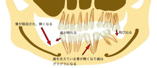 歯が抜けて放置した結果、骨が吸収されてしまった図